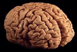 Brain_01 [320x200]