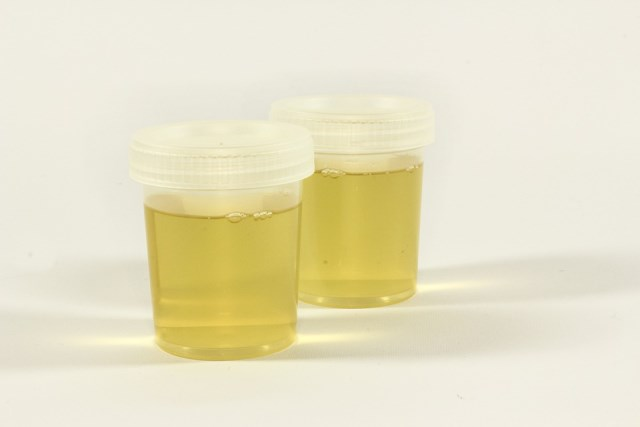 urine test pix [640x480]